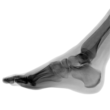 X-ray picture of the human foot